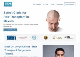 mexicobariatricsurgery.org